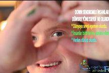 DOWN SENDROMU / #down syndrome