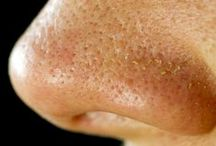 Minimizing Enlarged Pores / Exploring why people get enlarged pores and how to get rid of them.