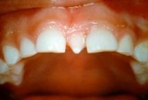 Dental Problems / Dental Problems with pins about many different dental problems and diseases that can occur in your teeth and mouth.