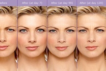 Botox / BOTOX® Cosmetic is a simple, non-surgical procedure that is very effective for reducing lines of movement (dynamic rhytides). Results are seen within 14 days and it typically lasts approximately 3-4 months. BOTOX® can be used to soften the glabellar crease (11's), crow's feet, and forehead wrinkles just to name a few. It is also very effective for a non-invasive eyebrow lift. All of our injectors have advanced training in this field.