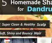 Dandruff Remedy / Home remedies for Itchy, Flaky Scalp and Dandruff
