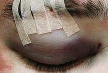 b: injuries