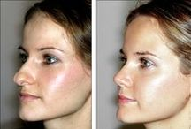 Cosmetic Surgery Gone Right / Everyone has seen images of celebrities that have gone overboard with cosmetic surgery. It's time to highlight some of the stories about successful cosmetic surgery- procedures that improve peoples' self-image and day to day lives.