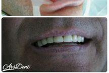 Metamorfozy Ars Dent / Zobacz jak przywracamy uśmiech naszym Pacjentom!