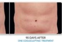 Coolsculpting / CoolSculpting®, the FDA approved breakthrough technology to freeze away body fat permanently, is at Gorin Plastic Surgery and Medspa! Say Goodbye to Muffin Tops and Love Handles CoolSculpting is a safe, effective way to permanently lose stubborn body fat, muffin tops, love handles, back fat, bra line bulges, isolated belly fat, without surgery or downtime.
