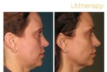 Ultherapy / Ultherapy counteracts the effects of time and gravity on your face and neck skin. The beauty of this 60-minute in-office procedure is that it stimulates the production of new, stronger collagen. The result? Tighter, better-fitting skin!