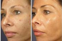 Chemical Peels / Has your skin lost its glow? You may need a light chemical peel to stimulate new skin cells leaving you with smooth glowing skin. We offer a wide variety of peels to meet your personal needs.