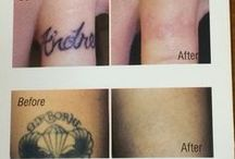Tattoo Removal / The state-of-the-art Q switch laser is used to remove most colors without leaving the skin scarred.