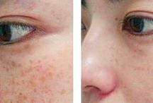 Cosmetic Dermatologist / Visit our site http://zrocderm.com/ for more information on Dermatologist Fort Lauderdale. Dermatologist Fort Lauderdale is a medical doctor who specializes in the treatment of disorders that influence the skin, nails and hair. A few of these problems include, but are not restricted to, pimples, eczema, skin psoriasis, skin cancer, moles, melanomas and skin tumors.
