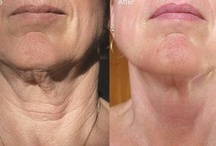 Real Results with Nerium AD / An age defying cream  ....that can produce amazing results...can your night cream do this? Can you get paid to use your night cream? Can you earn dream vacations, win prizes, ipads and cars...with your night cream? Can you get your night cream for free? Is your night cream scientifically safe to use? check out the Before and Afters and check this out to learn more:  http://www.nerium.com/default.aspx?ID=javhan2001