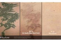 Laser Tattoo Removal / Examples of tattoo removals.  LaserSpa of Tampa Bay uses PicoSure and MedLite machines for our tattoo removals.