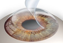 Vision Surgery / by AllAboutVision.com