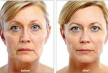 Dermal Fillers / The appearance of wrinkles and folds can be smoothed by adding structure and volume underneath and bringing sunken skin back up to the surface. Restylane®, Perlane®, and Radiesse® are cosmetic dermal fillers that restore volume and fullness to the skin to correct facial wrinkles and folds, giving it a healthy, youthful appearance.    www.TheMedicalSpa.com