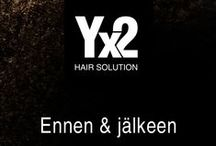 Yx2 – ennen ja jälkeen / Vaihe vaiheelta, kuinka Yx2 tuuheuttaa hiukset. http://www.yx2.fi/kauppa