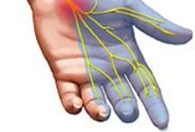 Carpal Tunnel Syndrome / Carpal Tunnel Syndrome/Median Nerve Entrapment/Occupational Disease/Repetitive Stress Injuries / by Second Opinion