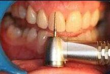 Oplossen tandartsangst met MatriXmethode / Iedere tandartsangst is een ervaring uit het verleden of een toekomstig moment wat al bedacht is hoe het zal gaan. Vervang de eigen angststrategie en zonder stress in de stoel. Scheelt gaatjes bij de patiënt en in de agenda van de tandarts en mondhygienist!