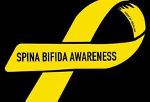 Awareness of  who I am / My spina bifida  and me, my love for the world around me and all I stand for  / by April Verity