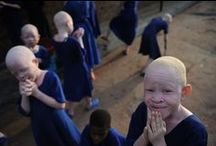 { albinism: humans }