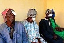 Ojos de Mali / Ojos de Mali  Curas oftalmológicas para la población en la región de Mopti: consultas, intervenciones quirúrgicas, prevención y formación [http://bit.ly/UllsdeMali]