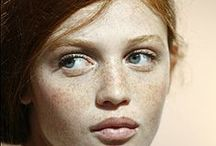 Freckles♥ / A girl without freckles is like a sky without stars!