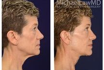 Lower Facial Rejuvenation at Michael Law MD Aesthetic Plastic Surgery