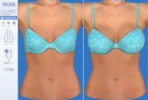 Vectra 3D imaging for breast augmentation / The 3D imaging VECTRA machine was found to be beneficial for patients considering breast augmentation in a recent article (Oct 2013) of Plastic & Reconstructive Surgery Journal, the main Plastic Surgery Journal worldwide,  The article concluded that patients prefer a center that offers three-dimensional imaging technology; they feel that the simulation is very accurate and helps them greatly in choosing the implant; and that if they could go back in time, they would choose the same implant again