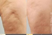 Cellulaze (cellulite treatment)
