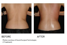 VaserShape (skin tightening)