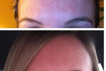 Natural Before & After / We all want healthy skin, and it is possible!  Seeing is believing, so here is some photographic evidence!