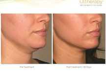 Ultherapy - Ultrasound Skin Tightening No Surgery Facelift