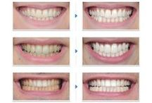 See Real Results! Before & After / Real before and after photos of GO SMiLE teeth whitening products users!
