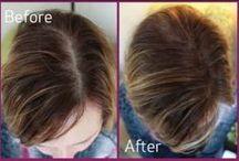 hairloss / hairloss instahairgrow.com