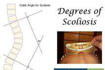 Scoliosis 3DC Blogs