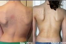 Schroth Method Scoliosis Exercise / Schroth Best Practice® scoliosis program results. Before and after scoliosis X-rays, photos and scoliosis exercises.