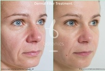 Dermal Fillers / Dermal fillers are a safe and instant treatment to reduce facial lines and wrinkles. These lines and creases typically begin to appear after the age of 25 and are caused by the natural breakdown of collagen and elastin fibres as we age. This natural breakdown is accelerated by factors such as smoking, sun exposure, stress and poor diet - http://www.botonics.co.uk/treatments/dermal-fillers/#women
