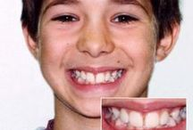 Smile Gallery / Before and After Images of some of our patients!