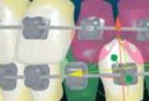 Sistema Insignia / Es un tipo de ortodoncia donde los brackets y los arcos se fabrican a medida de cada paciente. A través de un software el paciente puede ver el diseño de su sonrisa antes de comenzar el tratamiento.