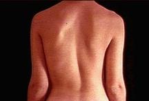 Scoliosis Information