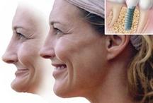 #Implanty_Warszawa / implanty warszawa#implanty AstraTech#implanty AlphaBio#lokatory na implantach#chirurgia szczękowa# http://www.declinic.pl/oferta/implantologia/