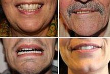 Stress im Kiefer / CMD, Bruxismus, Zähne, Kiefer, Zähneknirschen