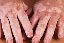 Natural Vitiligo Treatment / What is Vitiligo? Vitiligo is a skin disorder that causes patches of white skin to appear on different parts of the body.  It can occur in anyone, and affects all races and both genders equally. Worldwide, about 100 million people suffer from this condition and its prevalence in the United States is estimated to be around 1%.