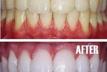 teeth. mouth. health.