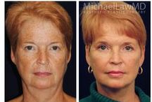 Facelift & Facial Rejuvenation  / The word 'rejuvenation' means, literally, 'to make young again'. In each individual, different facial changes occur with age. Surgical treatment of facial aging changes must therefore be carefully individualized to match each patient's aesthetic needs and desires.  An individualized surgical plan is then developed which addresses each patient's specific concerns and needs. http://www.michaellawmd.com/rejuve.html