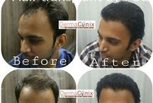 Hair Transplant Results, Before/After Images / DermaClinix is the Complete Skin and Hair Transplantation Center. It provides hair transplant, hair loss solution, FUE hair transplant, Wart, Botox®, Chemical Peel, Fillers treatment and etc. The reason  behind this board is to show the best hair transplant surgery results.