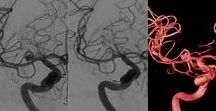 neurorradiología / http://laneuroimagen.blogspot.com