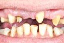Implantes dentales / Implantes dentales, implante dental, cirugía dental, muela de juicio, extracción de cordales, dentadura postiza, puentes dentales, carillas dentales, coronas dentales, carilla dental, corona dental, puente dental