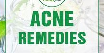 Acne Remedies / Homemade Acne Remedies Overnight, Natural Remedies for Cystic Acne, Hormonal Acne and Forehead acne, DIY ideas that works for Teens. All about Acne Remedies!!! Follow us on Pinterest!