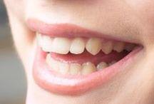 Wybielanie Zębów / Wszystko wybielanie Zębów związane można znaleźć na Zdrowie.kikik.co. Dowiedz się, jak dbać o wybielanie Zębów tutaj.