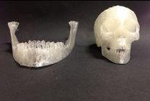 3D in Medicine