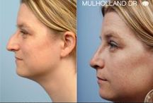 Rhinoplasty / Rhinoplasty before and after photos